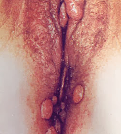 genital warts on females