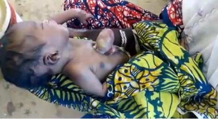 Baby born with exposed heart in Yobe State is dead