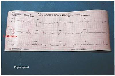 Kalibrasi dan Kecepatan EKG