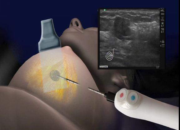 Ohio physician breast cryoablation
