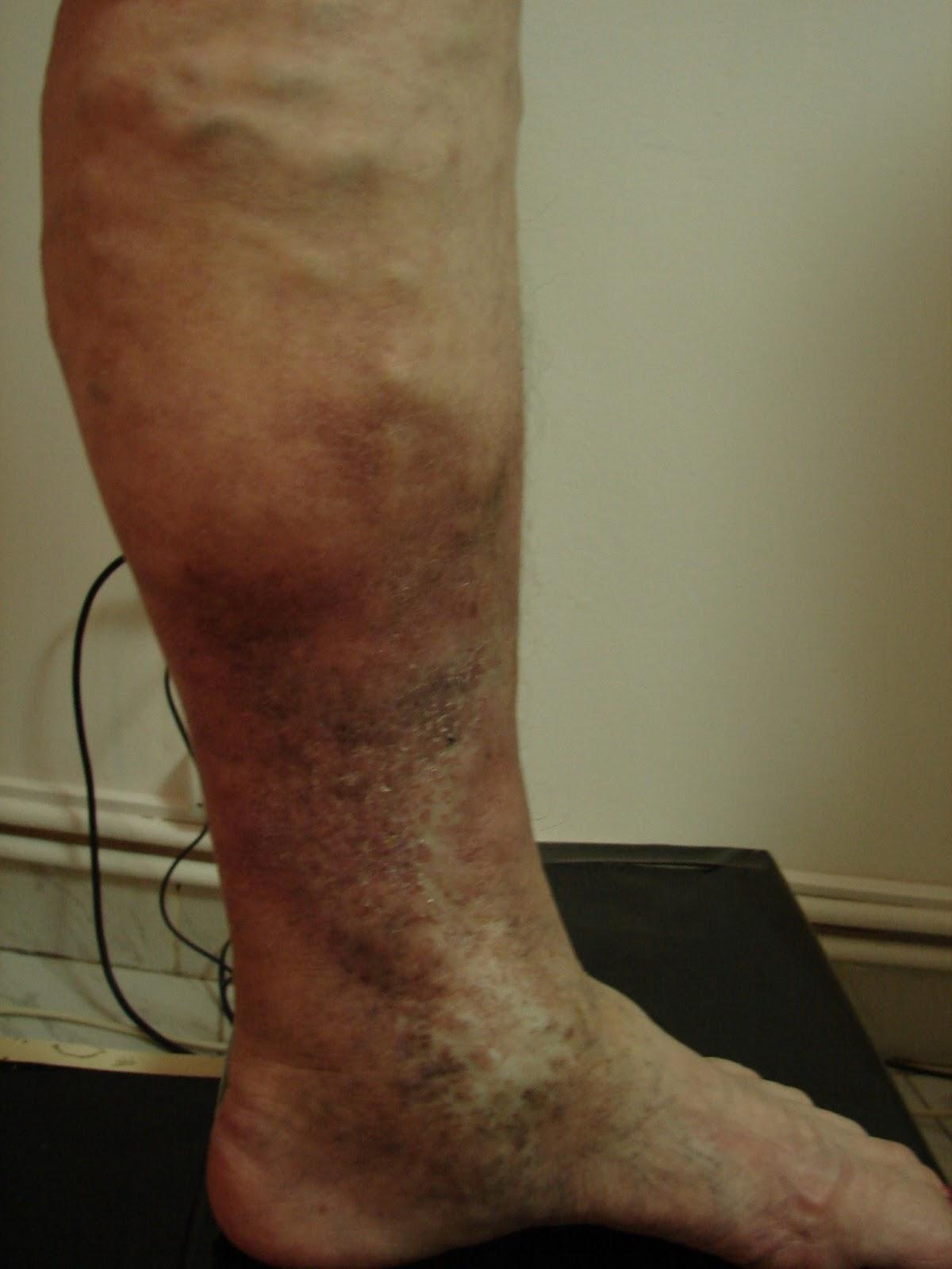 acnee pe picioarele varicoasei)