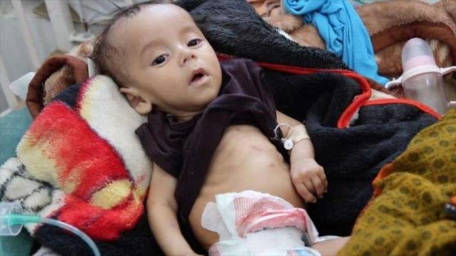 ONU reconoce su incapacidad de combatir la hambruna en Yemen