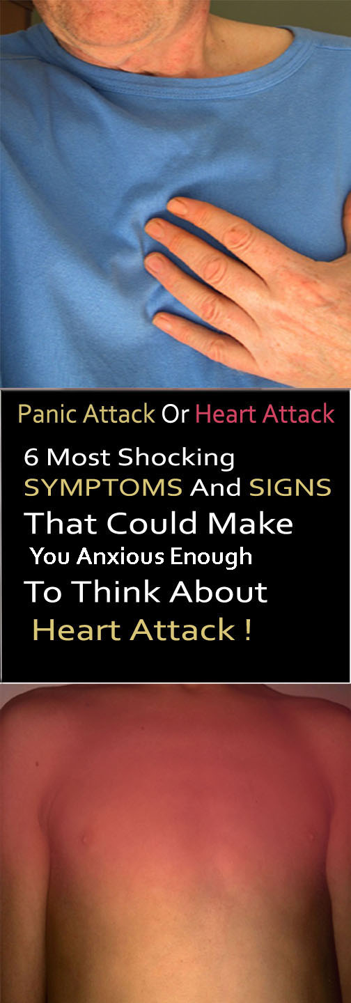 Panic Attack Or Heart Attack, 7 Most Shocking Symptoms That Could Make You Anxious Enough To Think About Heart Attack