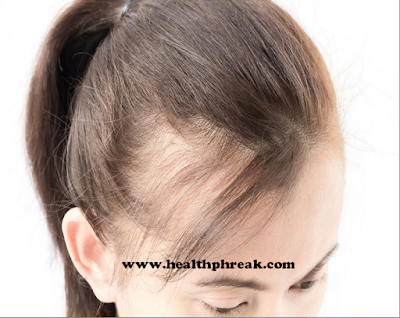 hair loss, baldness, 3 Things to Consider About Hair Transplant Surgery