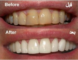 Images search for a recipe Educate yourself tooth whitening result