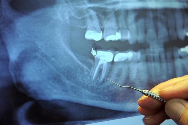 97  % من مرضى السرطان في مرحلته النهائية سبق وقاموا بهذه العملية عند طبيب الأسنان!