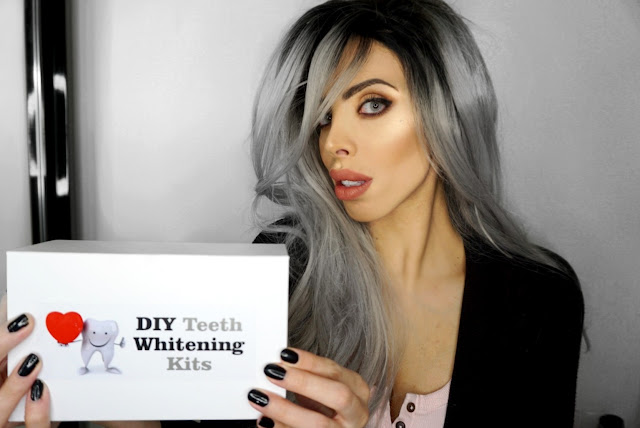 HOW TO GET WHITER TEETH WITH THE DIY TEETH WHITENING KITS review T SAVANA RAE