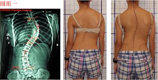 沒有背架輔助,極大角度之脊椎側彎能否被矯正?