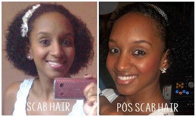 Scab Hair. O que é e como tratar?