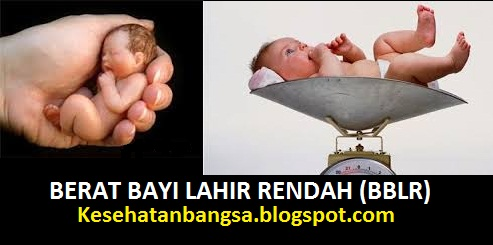 berat bayi lahir rendah pdf bayi berat lahir rendah menurut who bayi berat lahir rendah dan komplikasinya bayi berat lahir rendah ppt berat badan bayi lahir rendah makalah berat badan lahir rendah berat badan lahir rendah pdf bayi bblr cukup bulan