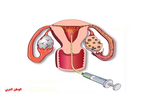 علامات نجاح التلقيح داخل الرحم
