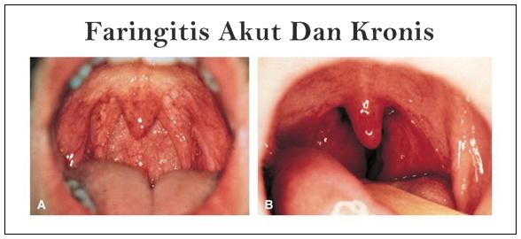 Cara Cepat Mengatasi Faringitis Akut Dan Kronis Secara Alami