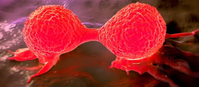Θεραπεία του καρκίνου με πρωτόνια: Η νέα μέθοδος με θεαματικά αποτελέσματα σύντομα και στην Ελλάδα