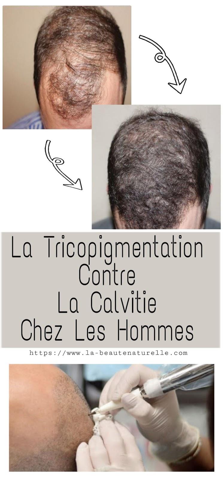 La Tricopigmentation Contre La Calvitie Chez Les Hommes