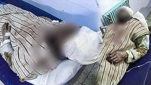 شخص يهشم رأس أخيه بعد نزاع في الناظور..