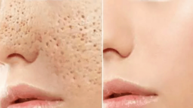 Open Pores Will Disappear From Your Skin Forever