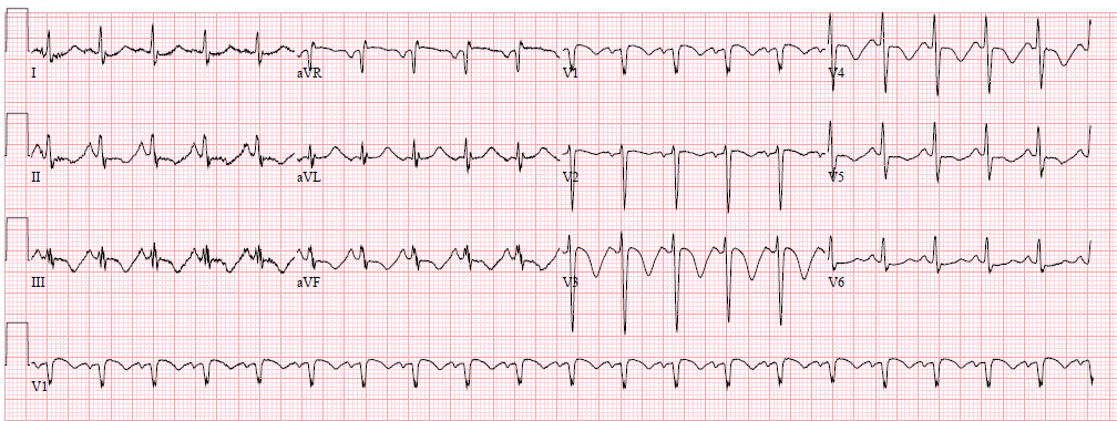 dr. smith's ecg blog: a crashing patient with an abnormal ecg that