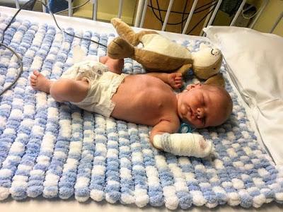 Bayi Baru Lahir Terkena Meningitis akibat Ciuman