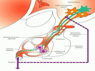 Azoospermia Dengan Hiperprolaktin