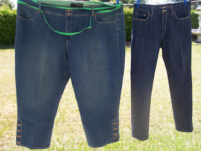 Jeans Weight Loss Surgery