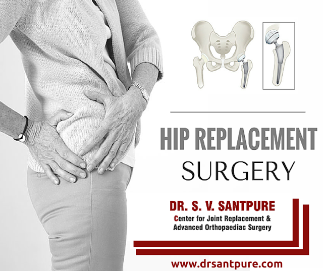 Hip Replacement Surgery in Maharashtra
