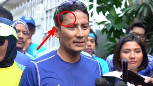 Bentuk Urat Dahi Sandiaga Uno jadi Sorotan, Netizen Sebut Mirip Lafaz Allah
