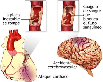 El VIH y tu salud cardiovascular: ¿Qué relación tienen?