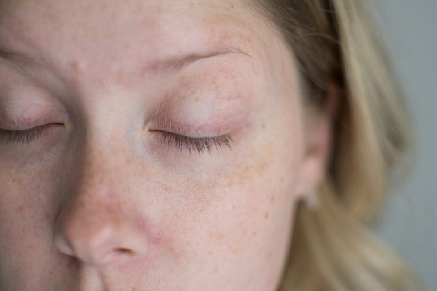 6b7c422618e Popular beauty blogger Kate of The Small Things Blog shared the dry eye  side effects that made her quit Latisse on her blog. via