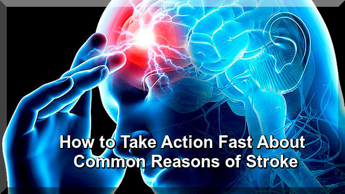 How to Know Common Reasons of Stroke