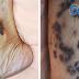 皰疹病毒引起的卡波西氏肉瘤