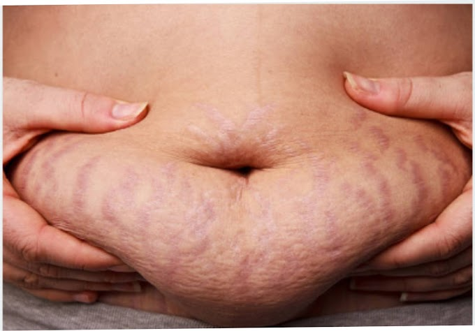 Stretch Marks and Its Causes