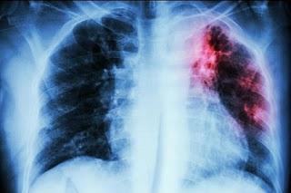 cara mengobati penyakit paru-paru dengan obat tradisional