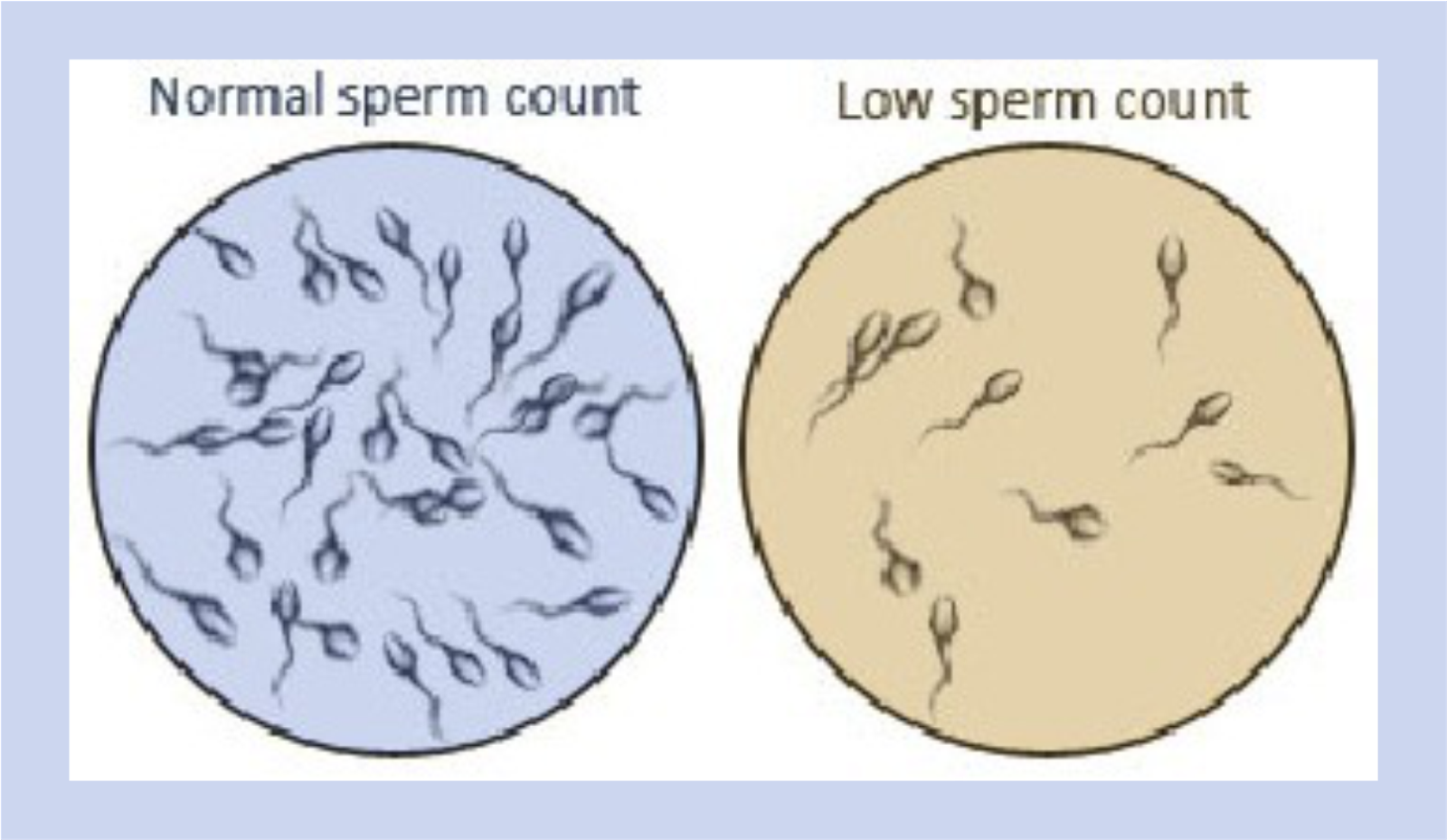 Causes of less sperm images 702