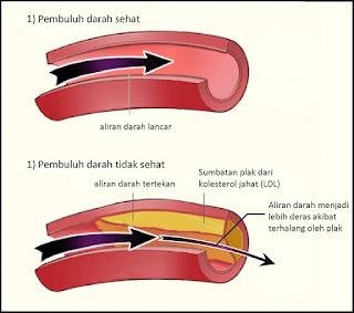 Cara Mengobati Penyakit Kolesterol
