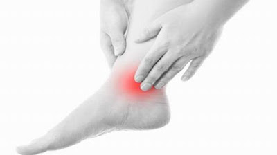Ankle Pain and Peroneal Tendonitis from Chiropractor in Rockledge