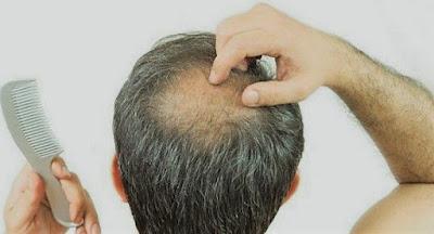 Masturbasi Menyebabkan  Rambut Rontok?Mitos atau Fakta