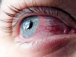 Azonban a felelőtlenül viselt és túlhordott kontaktlencse okozhat akár  olyan visszafordíthatatlan károsodást c6d146b0a0