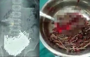 Doctors Remove Over 200 NAILS From 15-Year Old Boy's Stomach