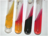 Triple Sugar Iron Agar test (TSI test): Principle, Procedure and Interpretation