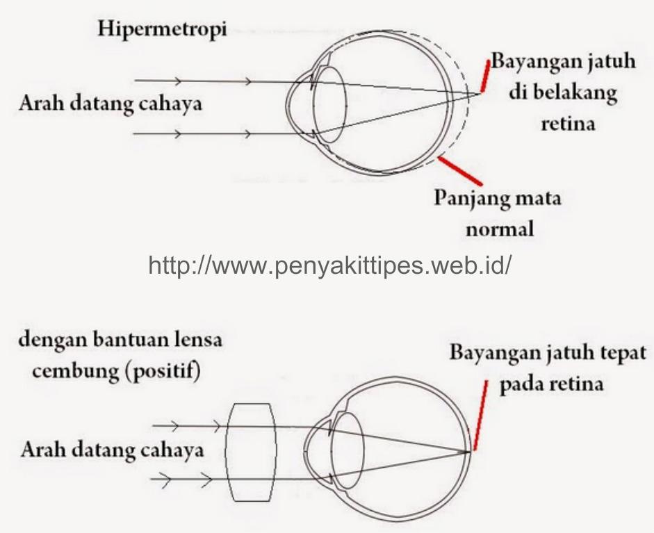 Penyakit Mata Hipermetropi (Rabun Dekat)