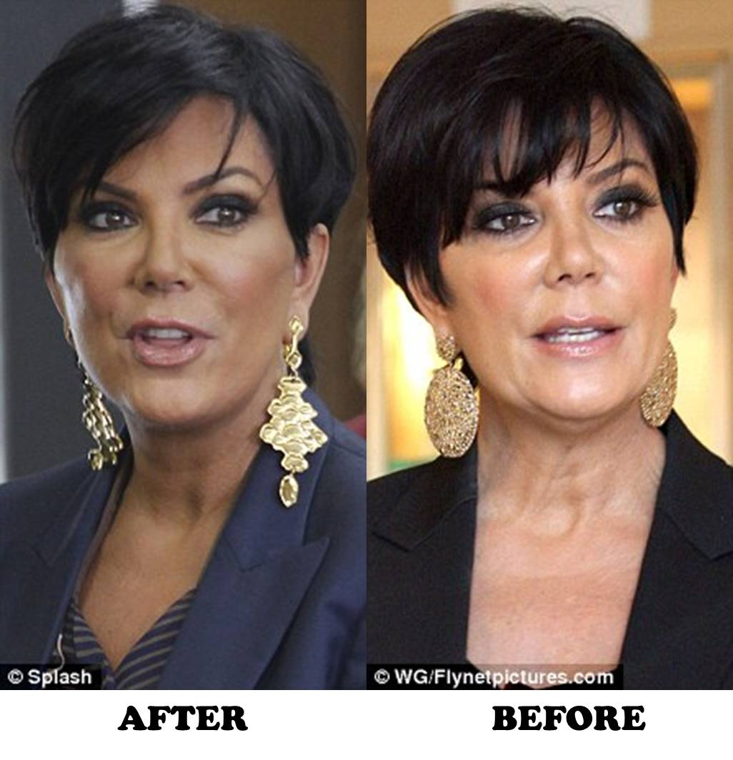 Kris Jenner Plastic Surgery Before And After Botox And New Facelift