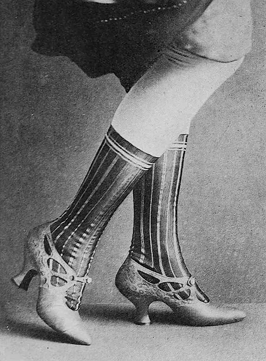 a 1917 photograph, sexy ankles
