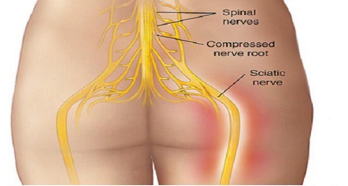 dor ciática - este tratamento é bem-sucedido em quase 100% dos casos!