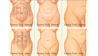 Tummy Tuck And Other Surgeries