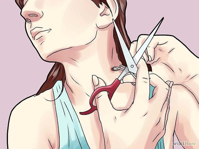 petua hilangkan lebihan kulit skin tag tanpa kesakitan