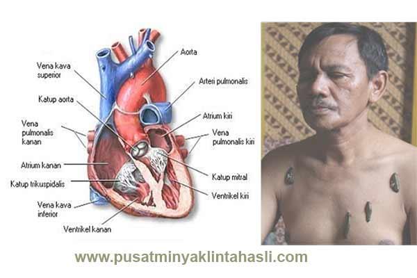 Terapi Lintah Penyakit Jantung
