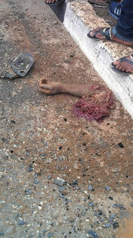 nigerian policeman hand chopped off