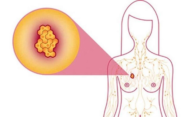 Amazing: Six Foods That Kill 100 Percent Of Breast Cancer Cells