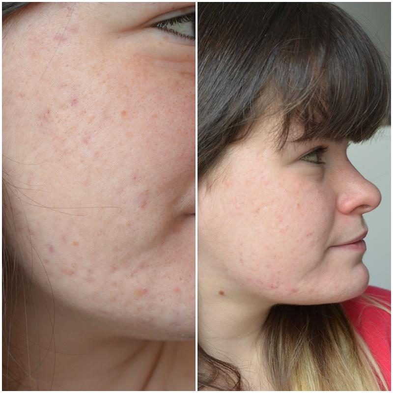 bilan, 1 an de traitement contre l'acné côté droit comparaison