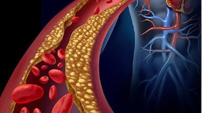 colesterol e triglicerídeos alto